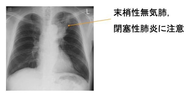 レントゲン 肺炎