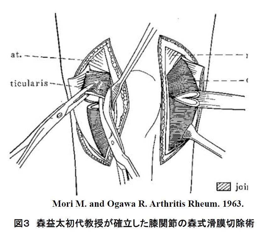 森益太初代教授が確立した膝関節の森式滑膜切除術