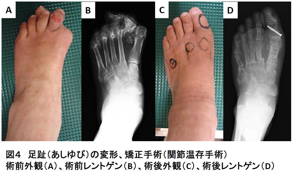 足趾(あしゆび)の障害写真