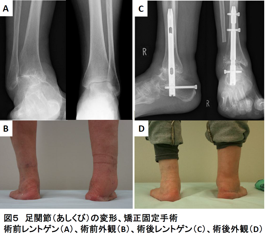 足関節(あしくび)の障害写真