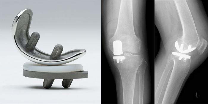 人工膝関節単顆置換術レントゲン写真