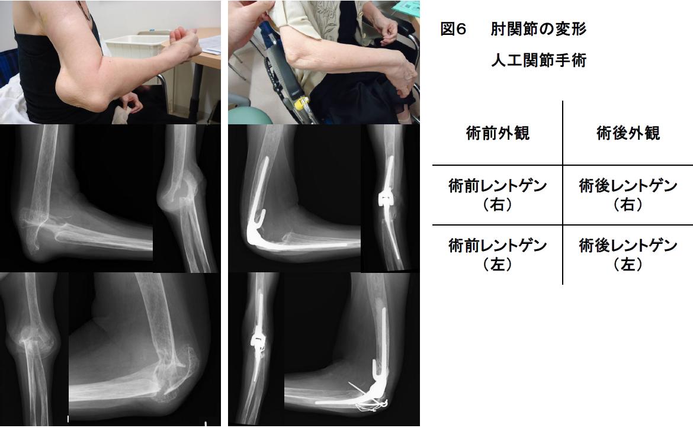 肘関節の障害