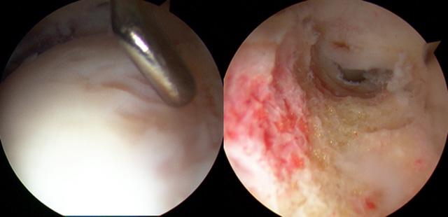 43歳女性、CAM変形に対するOsteochondroplasty