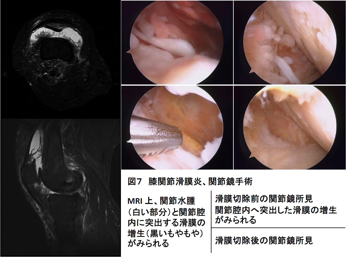 膝関節の滑膜炎写真