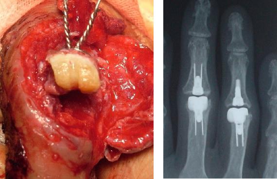 左;掘削してもらった肋軟骨移植関節面、右;人工指関節、関西医大OB南川モデルself lockingは国内シェアNo1
