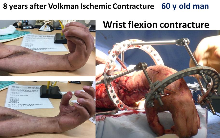 手関節拘縮の創外固定を用いたリハビリテーション