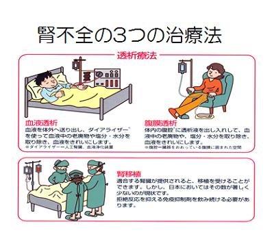 腎不全の3つの治療法