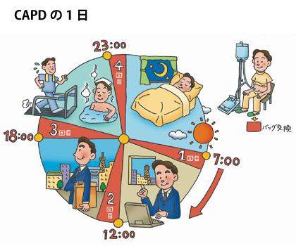 CAPD図1