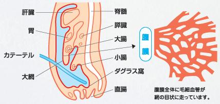 腹膜とは | 京阪PDネットワーク